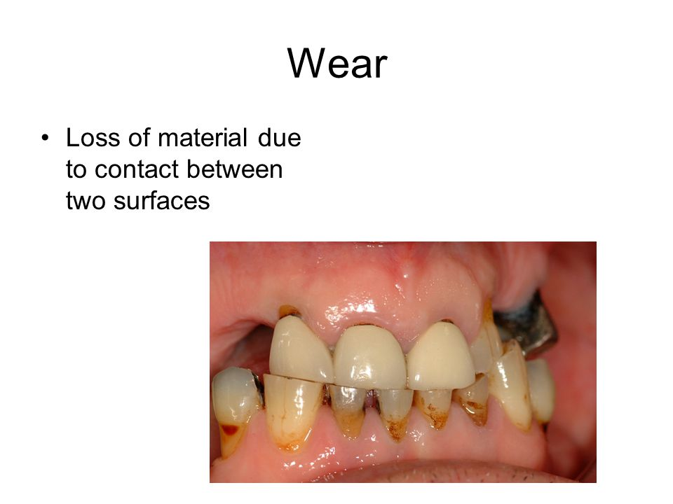 Wear Loss of material due to contact between two surfaces