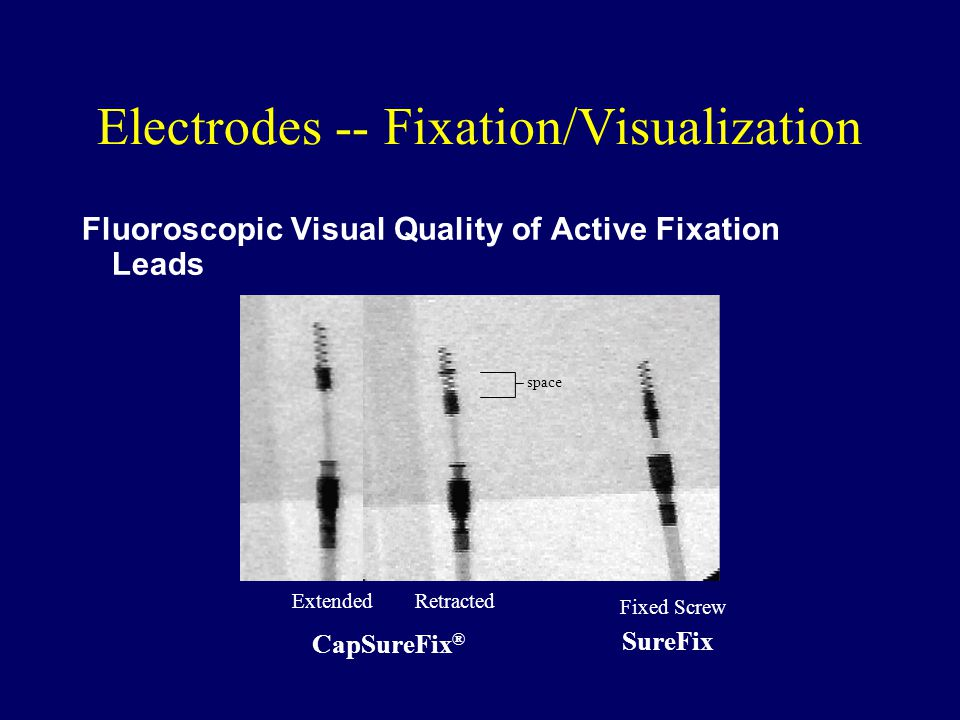 Electrodes -- Fixation/Visualization Fluoroscopic Visual Quality of Active Fixation Leads SureFix CapSureFix ® Extended Retracted Fixed Screw space