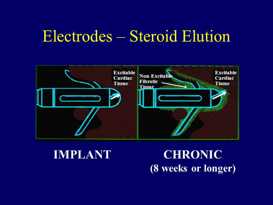 Electrodes – Steroid Elution IMPLANTCHRONIC (8 weeks or longer) Excitable Cardiac Tissue Non-Excitable Fibrotic Tissue Excitable Cardiac Tissue