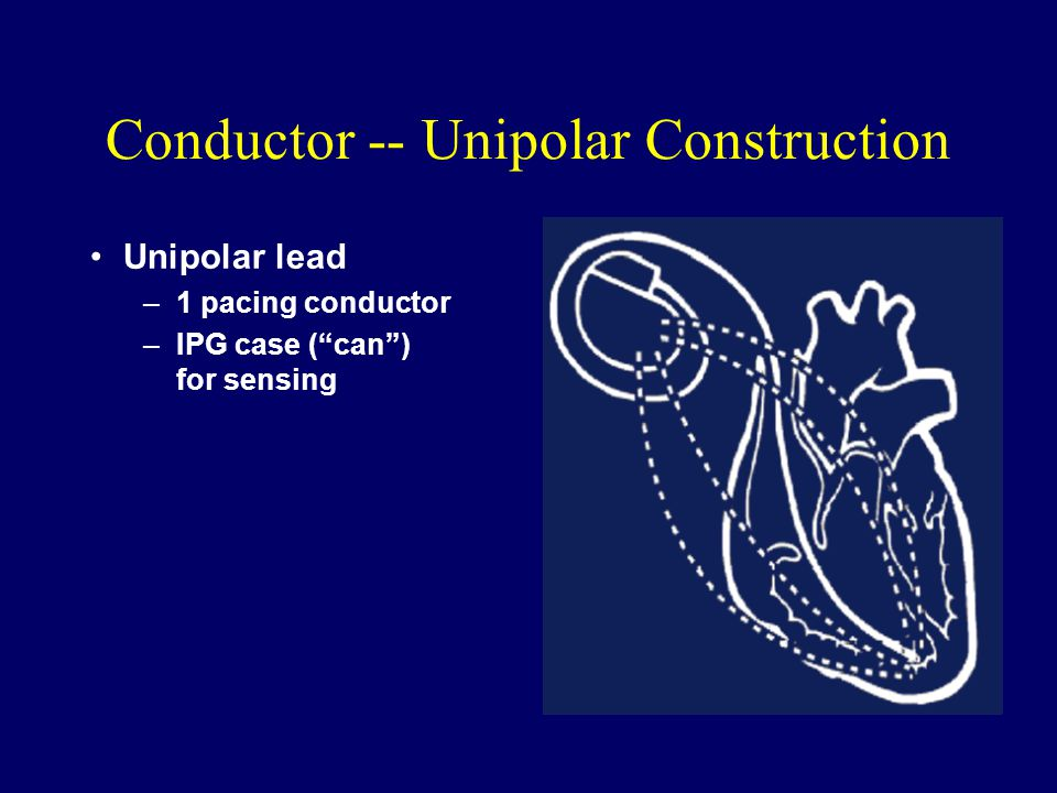 Conductor -- Unipolar Construction Unipolar lead –1 pacing conductor –IPG case ( can ) for sensing