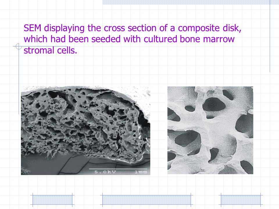 SEM displaying the cross section of a composite disk, which had been seeded with cultured bone marrow stromal cells.