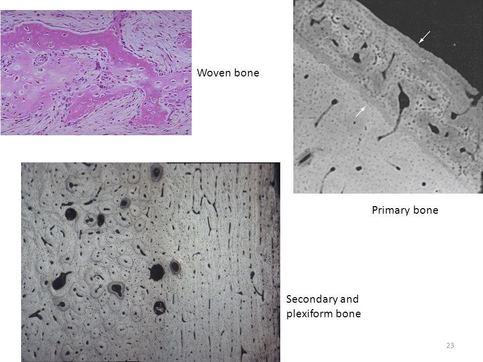 Primary bone Woven bone Secondary and plexiform bone 23