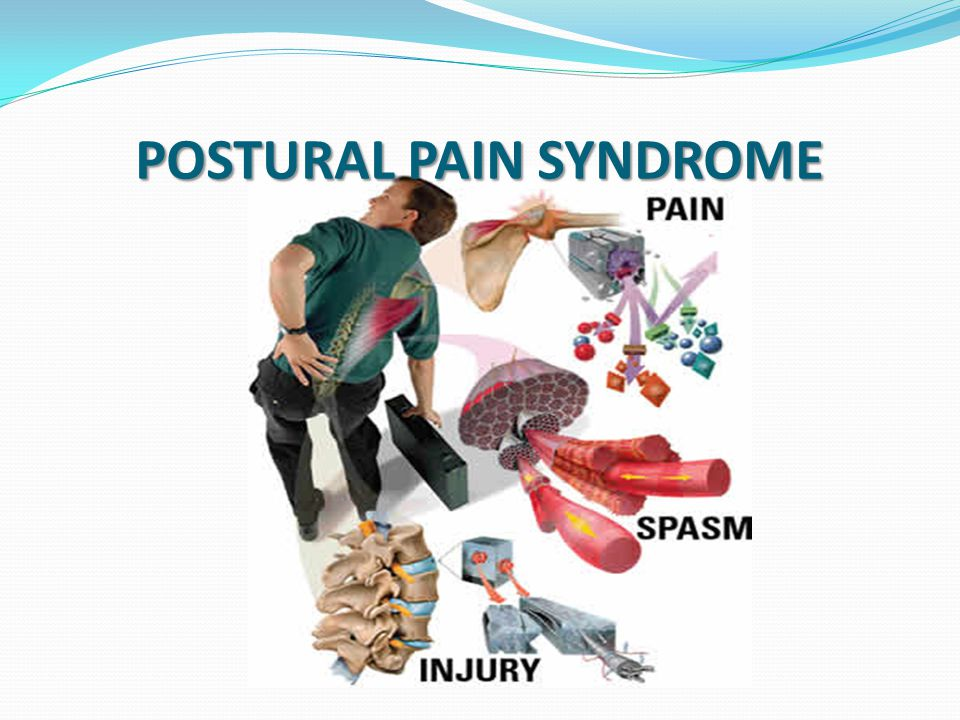 Definition Postural pain syndrome is pain that develops in the cervical, thoracic or the lumbar area due to poor posture maintained over a long period of time.