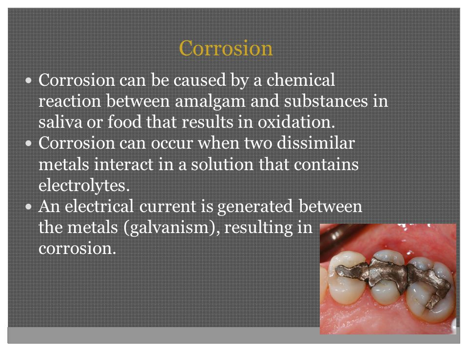 Corrosion Corrosion can be caused by a chemical reaction between amalgam and substances in saliva or food that results in oxidation. Corrosion can occ