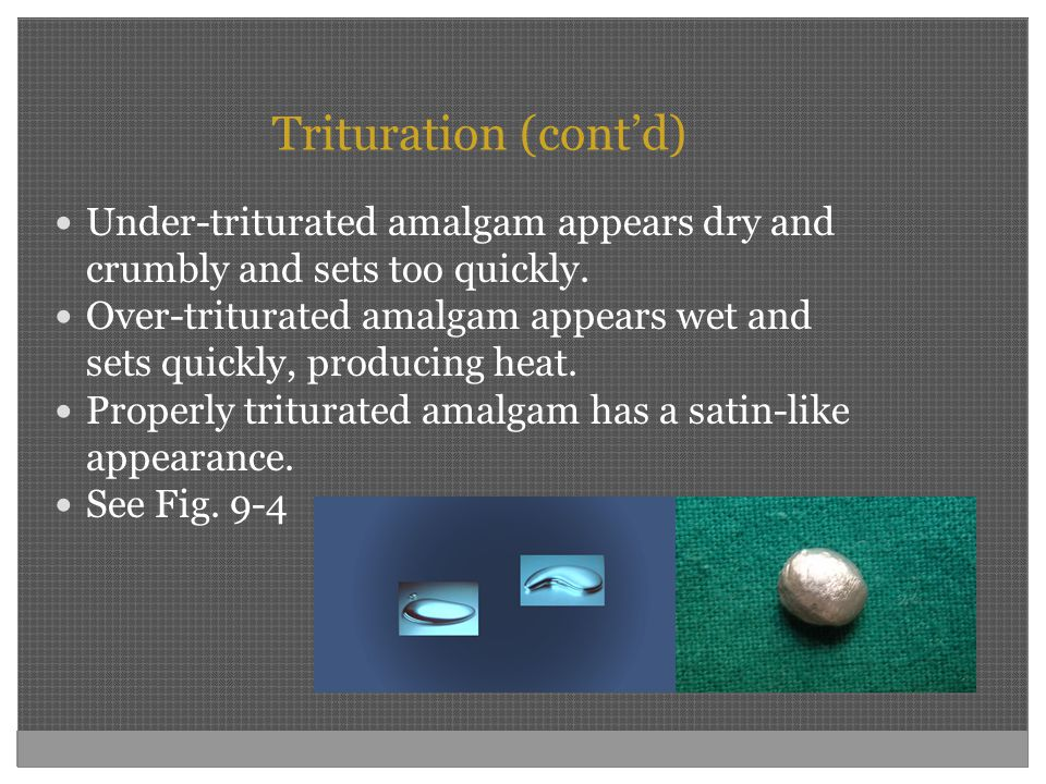 Trituration (cont'd) Under-triturated amalgam appears dry and crumbly and sets too quickly. Over-triturated amalgam appears wet and sets quickly, prod