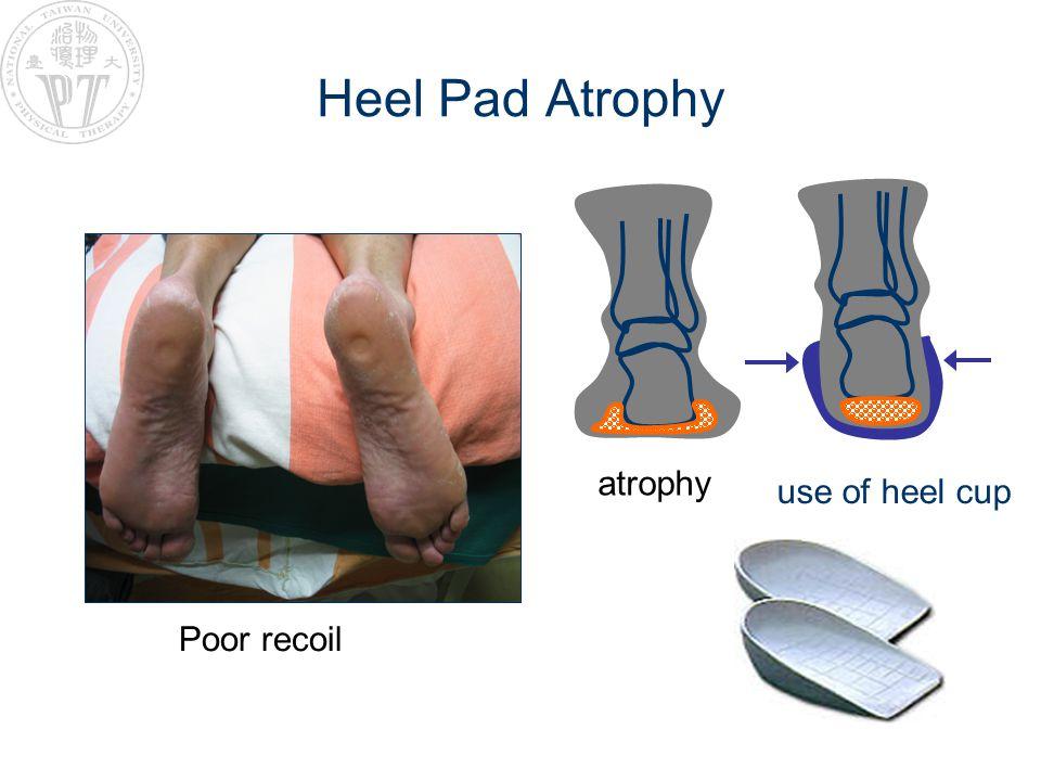 Heel Pad Atrophy use of heel cup Poor recoil atrophy