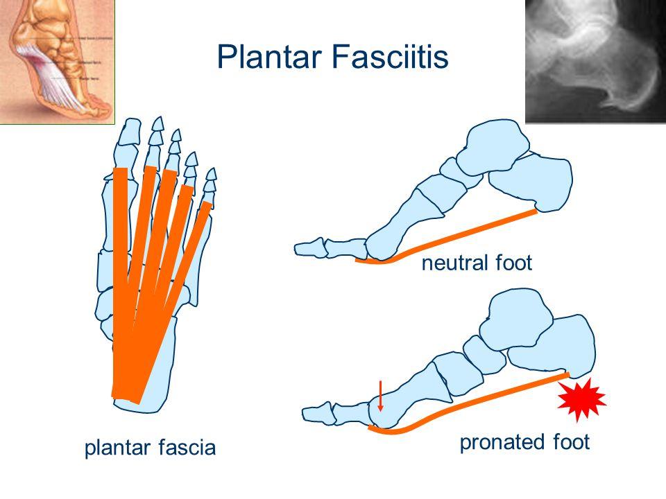 Plantar Fasciitis plantar fascia pronated foot neutral foot