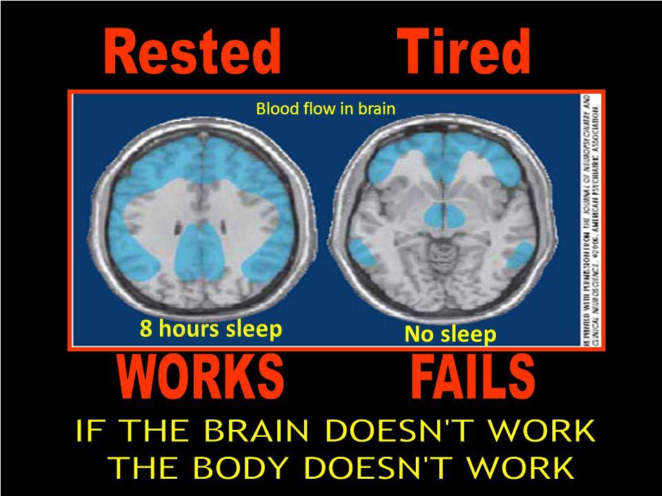 Blood flow in brain No sleep