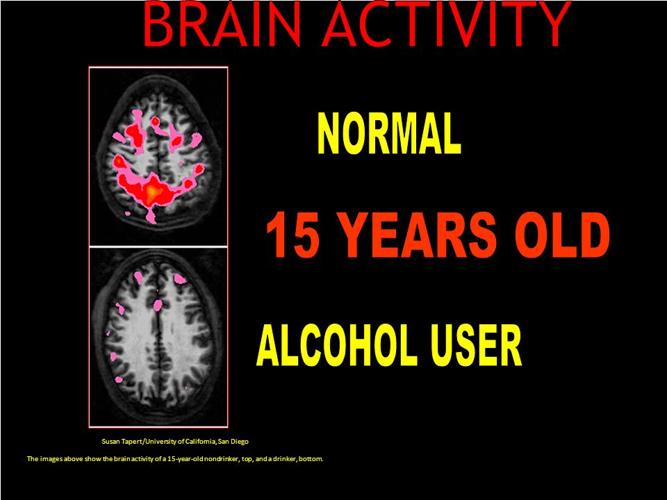 Susan Tapert/University of California, San Diego The images above show the brain activity of a 15-year-old nondrinker, top, and a drinker, bottom.