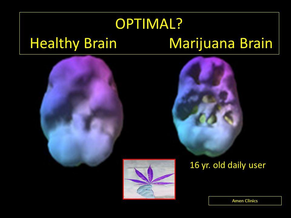 OPTIMAL? Healthy Brain Marijuana Brain Amen Clinics 16 yr. old daily user