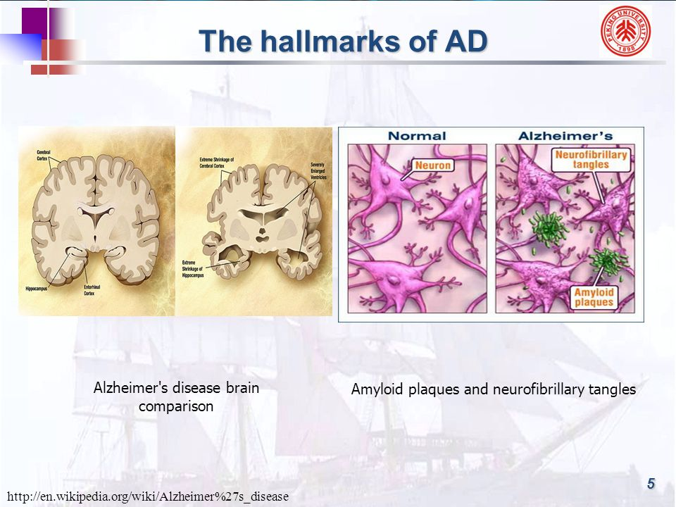 The hallmarks of AD Alzheimer s disease brain comparison http://en.wikipedia.org/wiki/Alzheimer%27s_disease Amyloid plaques and neurofibrillary tangles 5