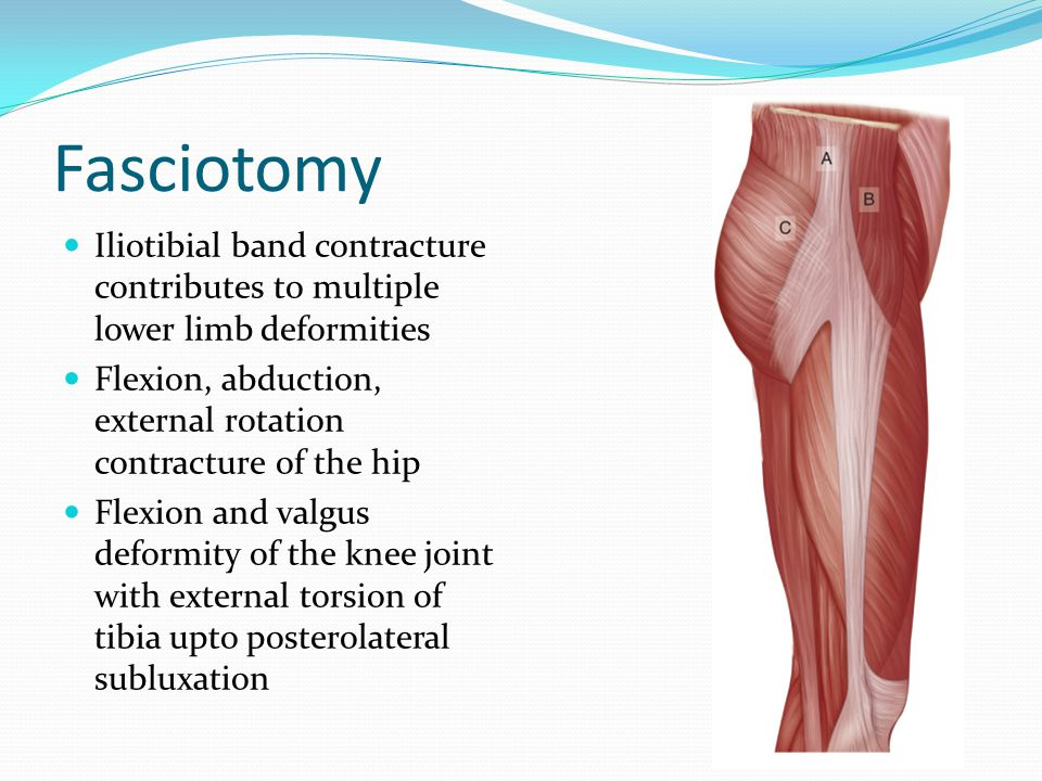 Fasciotomy Iliotibial band contracture contributes to multiple lower limb deformities Flexion, abduction, external rotation contracture of the hip Flexion and valgus deformity of the knee joint with external torsion of tibia upto posterolateral subluxation