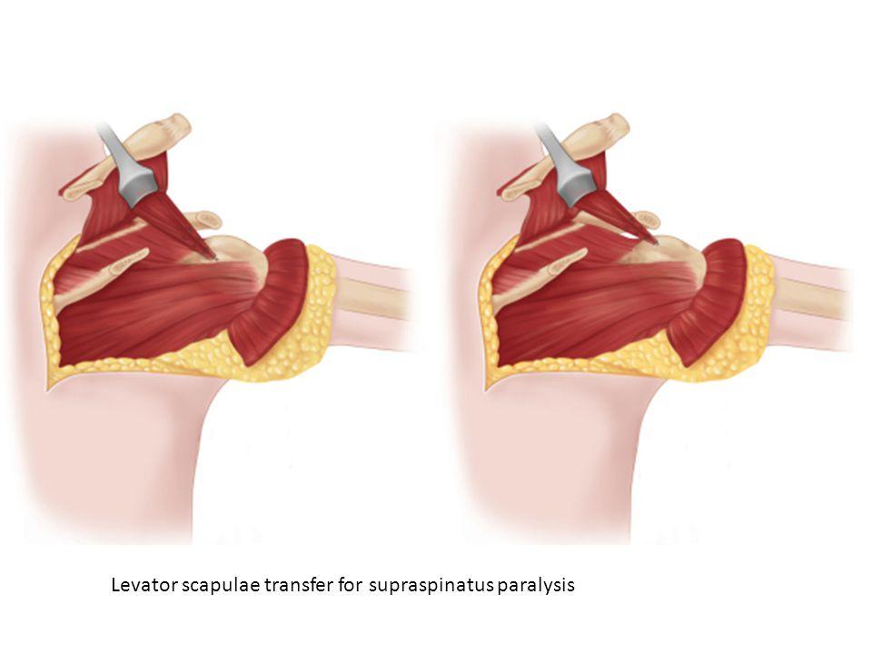Levator scapulae transfer for supraspinatus paralysis