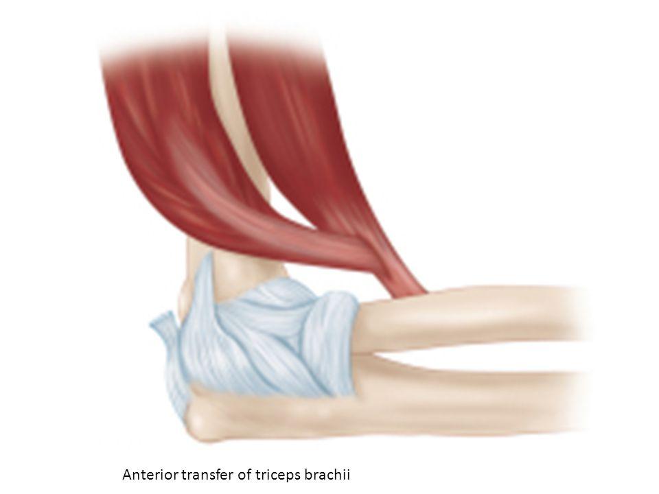 Anterior transfer of triceps brachii