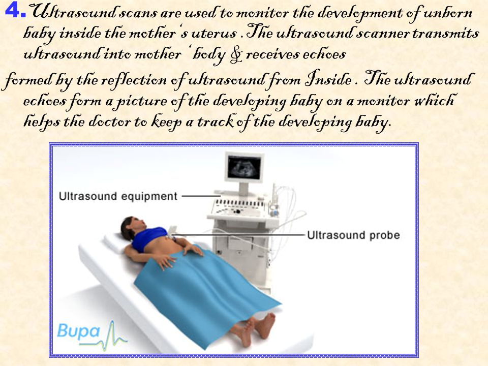 4. Ultrasound scans are used to monitor the development of unborn baby inside the mother's uterus.The ultrasound scanner transmits ultrasound into mot