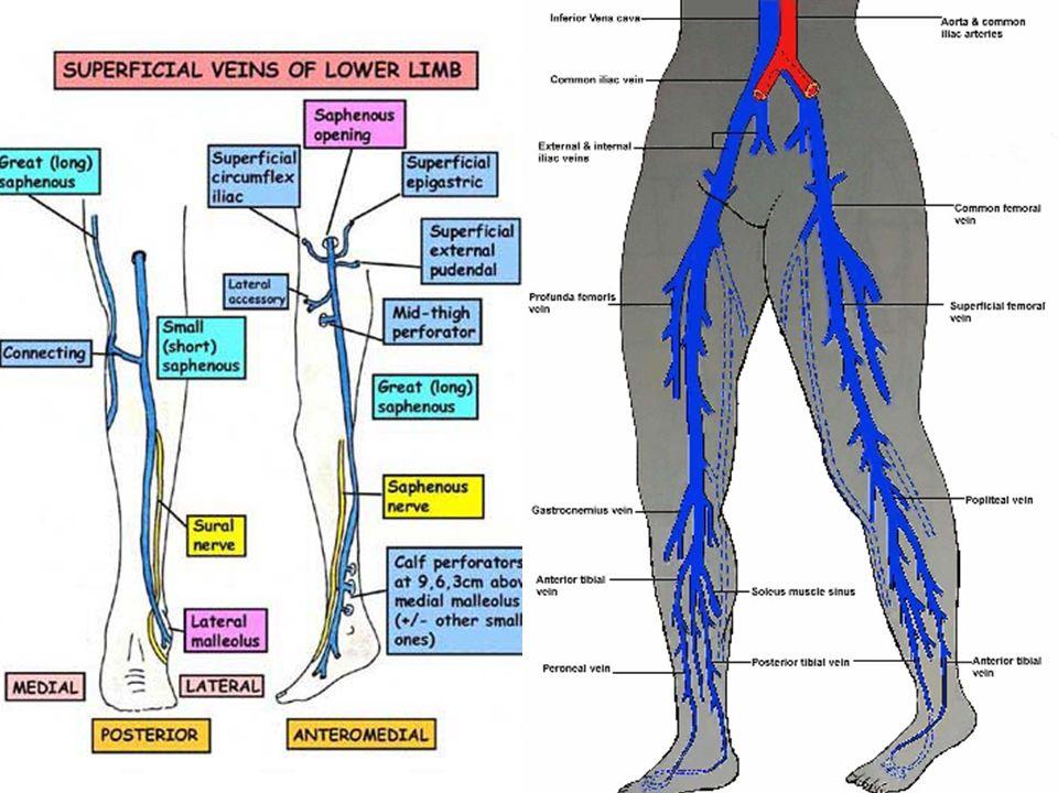 Venous Hypertension –Hydrostatic pressure vs Mechanical/muscular pressure A.