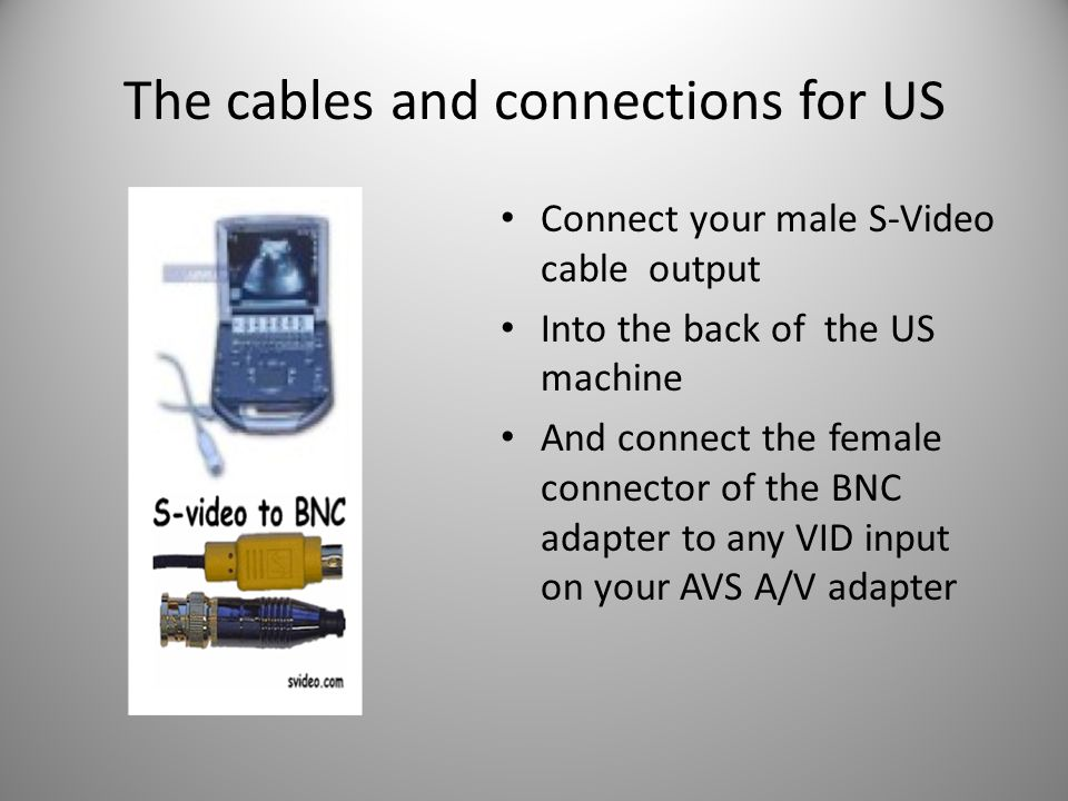 The cables and connections for US Connect your male S-Video cable output Into the back of the US machine And connect the female connector of the BNC adapter to any VID input on your AVS A/V adapter