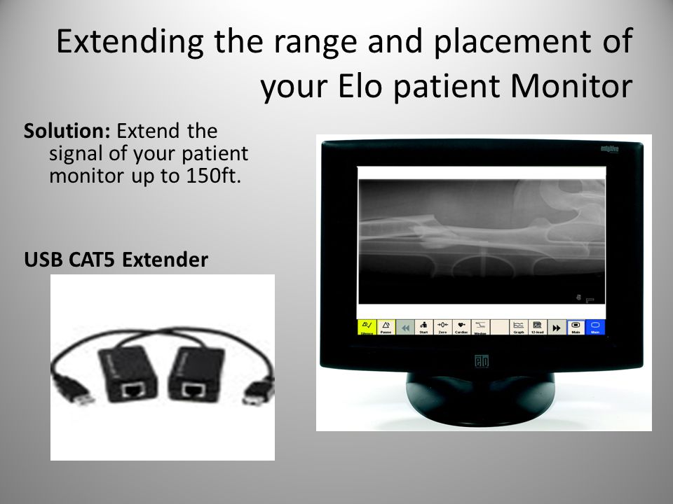 Extending the range and placement of your Elo patient Monitor Solution: Extend the signal of your patient monitor up to 150ft.