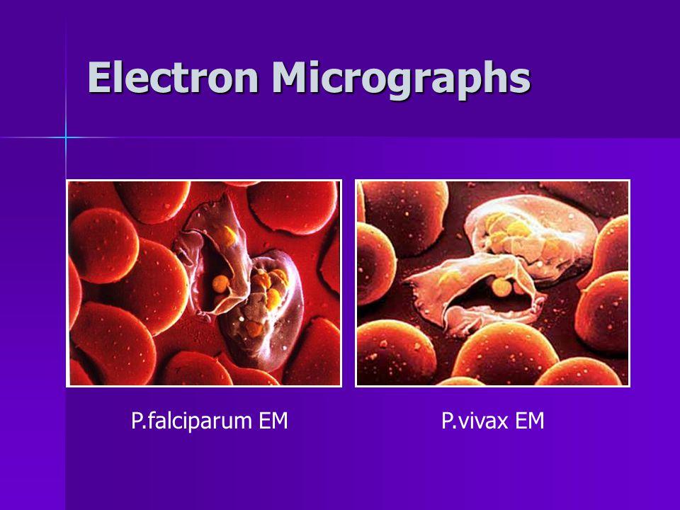 Electron Micrographs P.falciparum EMP.vivax EM