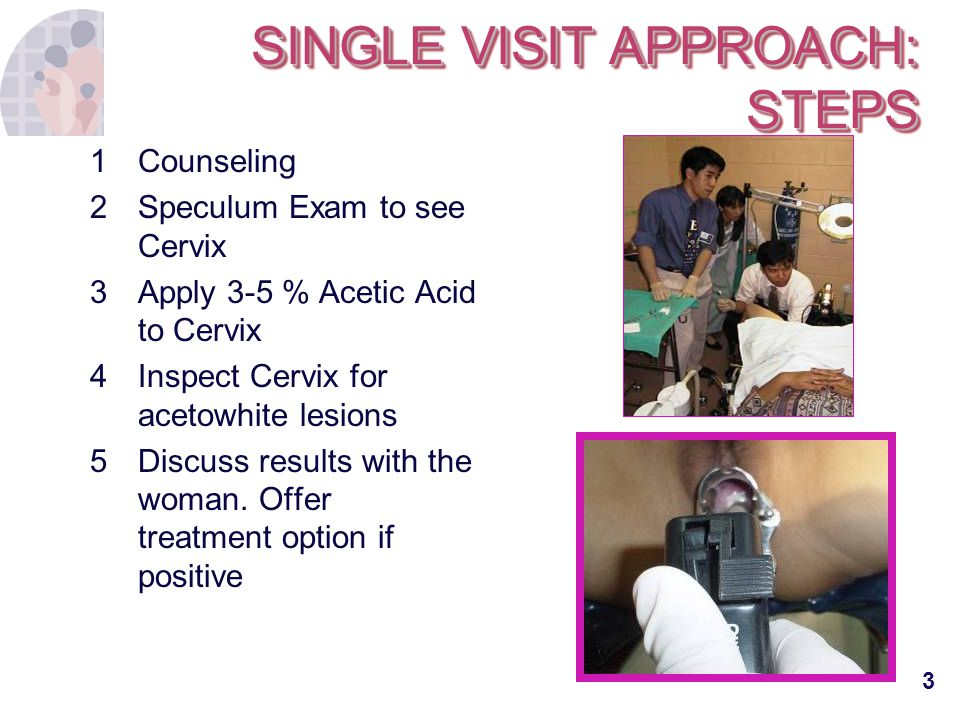 3 SINGLE VISIT APPROACH: STEPS 1Counseling 2Speculum Exam to see Cervix 3 Apply 3-5 % Acetic Acid to Cervix 4 Inspect Cervix for acetowhite lesions 5
