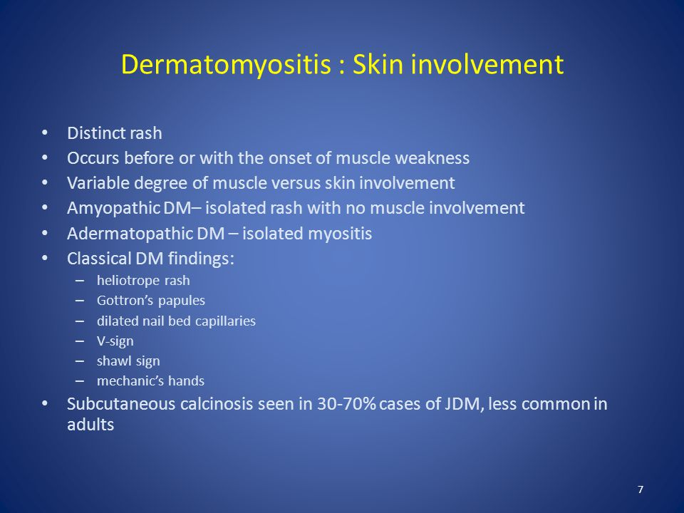 Dermatomyositis : Skin involvement Distinct rash Occurs before or with the onset of muscle weakness Variable degree of muscle versus skin involvement