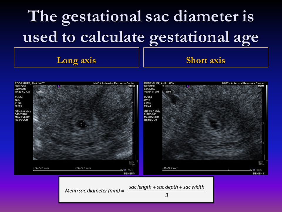 Long axis Short axis The gestational sac diameter is used to calculate gestational age
