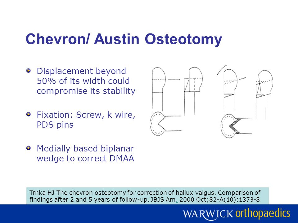 Chevron/ Austin Osteotomy Displacement beyond 50% of its width could compromise its stability Fixation: Screw, k wire, PDS pins Medially based biplana