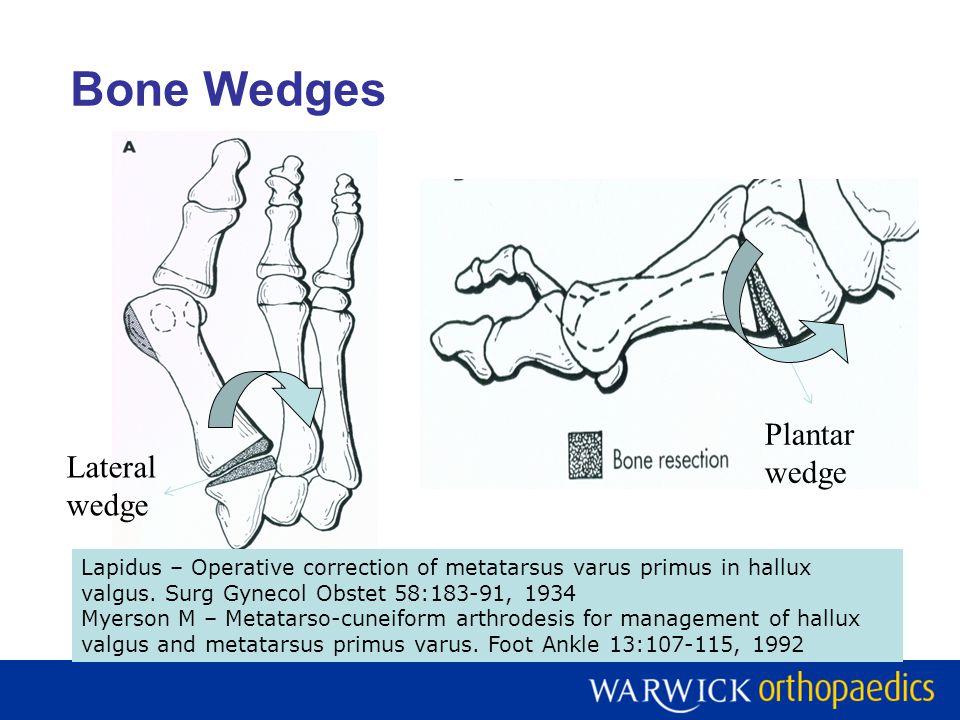 Bone Wedges Lateral wedge Plantar wedge Lapidus – Operative correction of metatarsus varus primus in hallux valgus. Surg Gynecol Obstet 58:183-91, 193