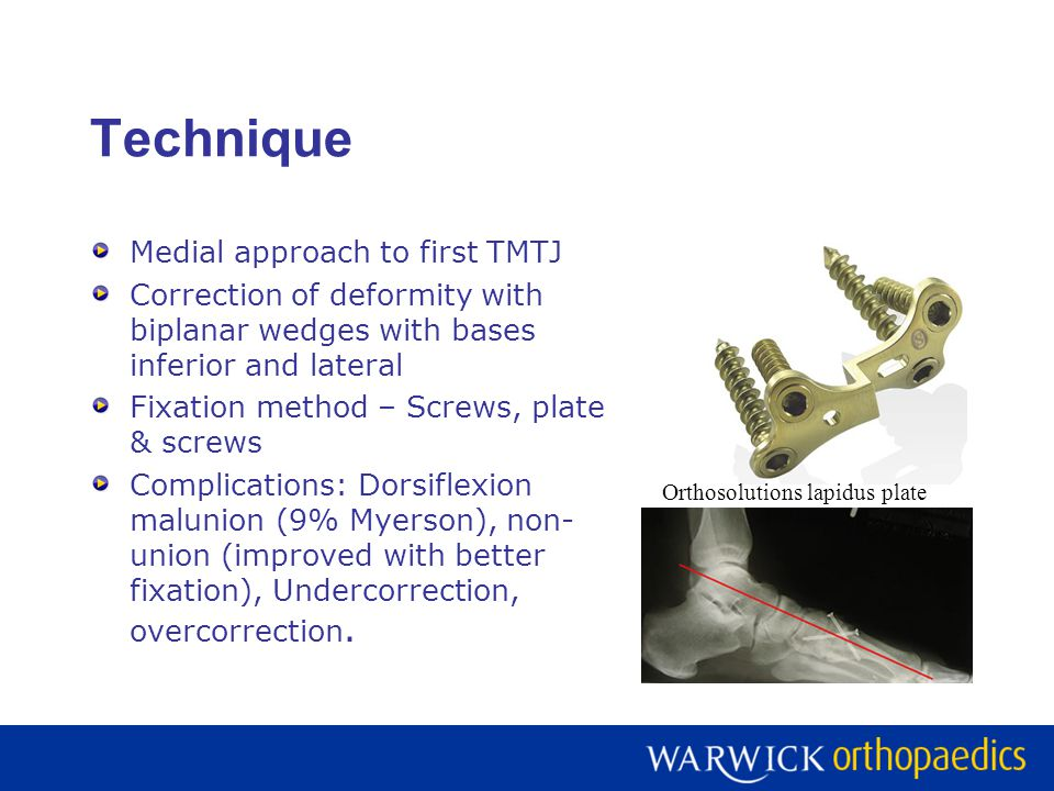 Technique Medial approach to first TMTJ Correction of deformity with biplanar wedges with bases inferior and lateral Fixation method – Screws, plate &