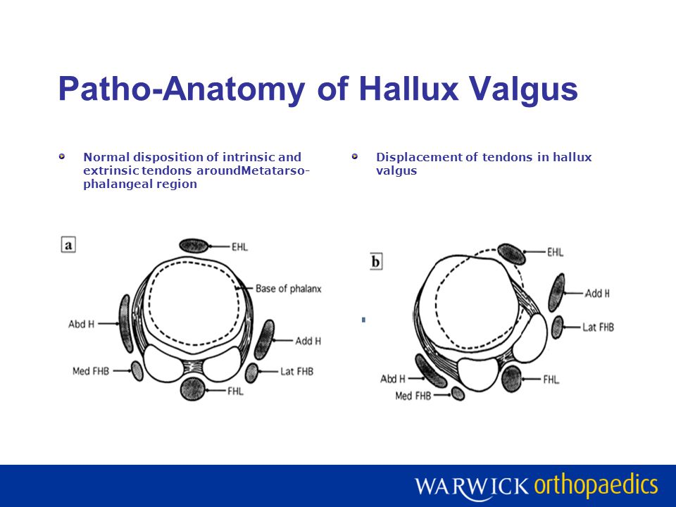 Patho-Anatomy of Hallux Valgus Normal disposition of intrinsic and extrinsic tendons aroundMetatarso- phalangeal region Displacement of tendons in hal