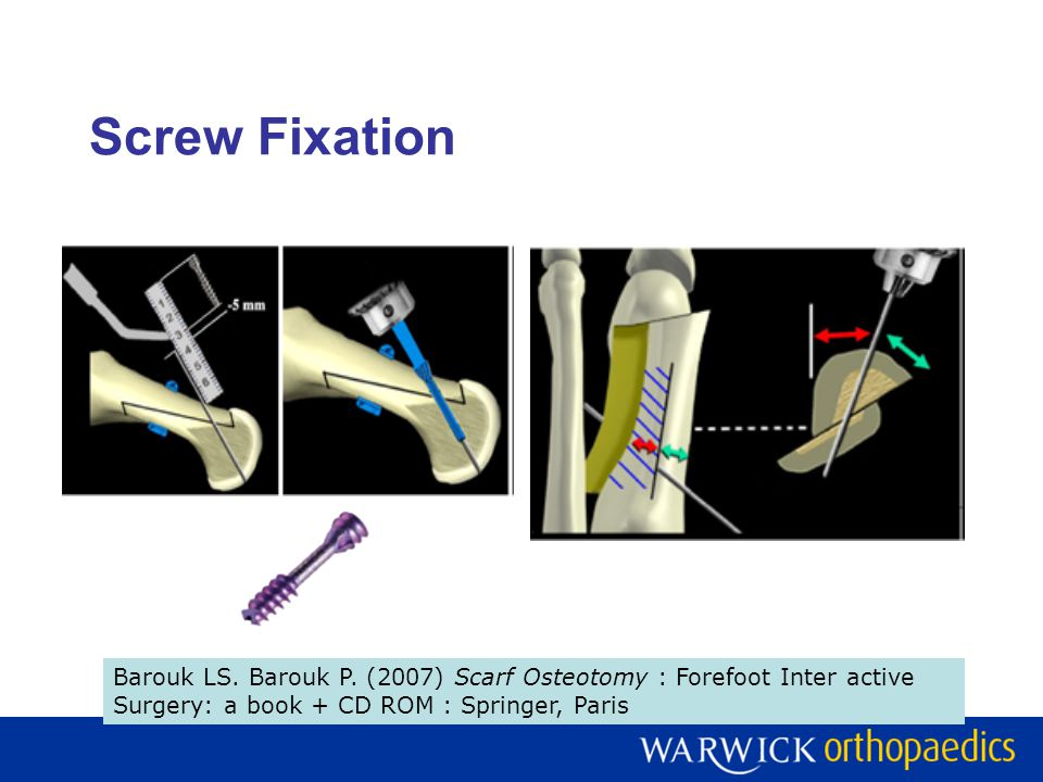 Screw Fixation Barouk LS. Barouk P. (2007) Scarf Osteotomy : Forefoot Inter active Surgery: a book + CD ROM : Springer, Paris