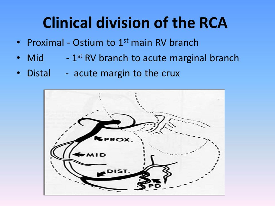 Clinical division of the RCA Proximal - Ostium to 1 st main RV branch Mid - 1 st RV branch to acute marginal branch Distal - acute margin to the crux