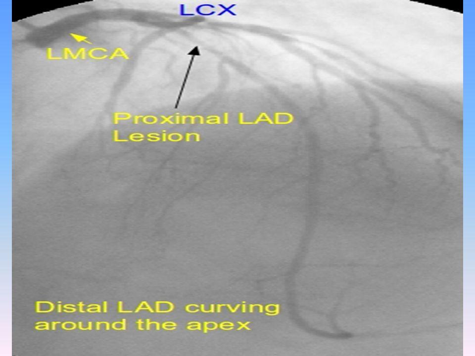 Left anterior descending artery - ~ 14.7 cm ; Type I (22%), Type II & Type III - 2-9 diagonal branches -90deg bend after turning around P. conus as it