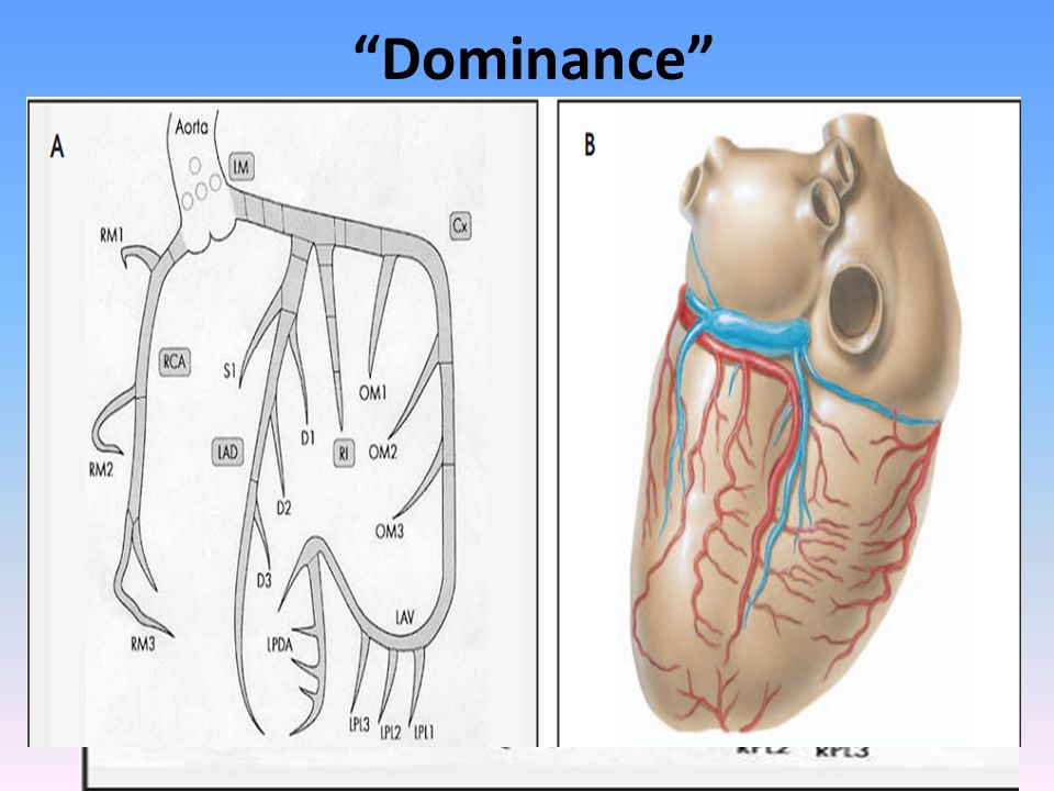 """""""Dominance"""" A misnomer giving rise to PDA, at least 1 PLV & AV nodal A (BARI classification) - 85% right dominant -8% left dominant -7% co-dominant (7"""