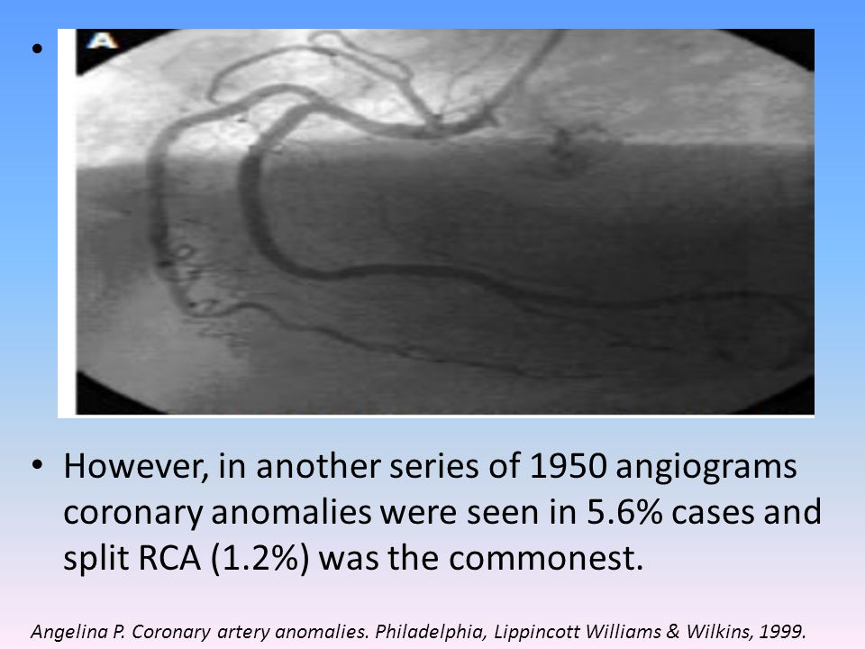 The most common coronary variation ( Cleveland Clinic-1,26,000 patients) was separate ostia for LAD & LCX – 0.41% and 2 nd commonest was LCX from RCS