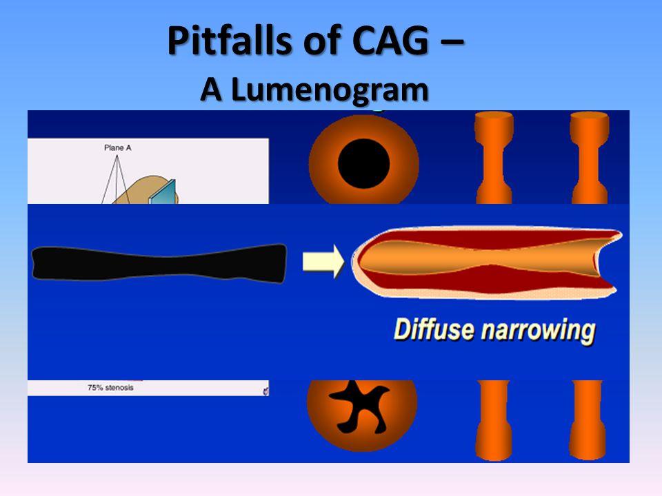 Pitfalls of CAG – A Lumenogram