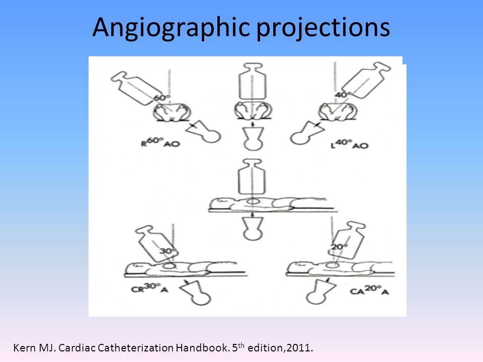 Kern MJ. Cardiac Catheterization Handbook. 5 th edition,2011.