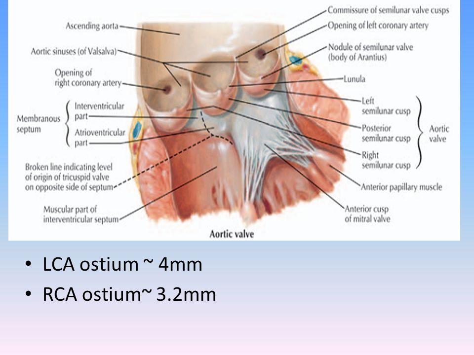 LCA ostium ~ 4mm RCA ostium~ 3.2mm