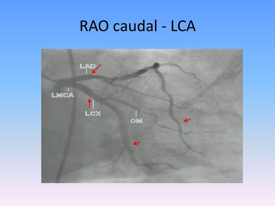 RAO caudal - LCA