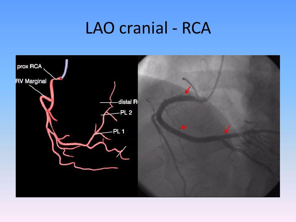 LAO cranial - RCA