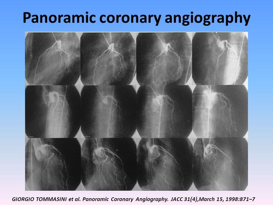 Panoramic coronary angiography GIORGIO TOMMASINI et al. Panoramic Coronary Angiography. JACC 31(4),March 15, 1998:871–7
