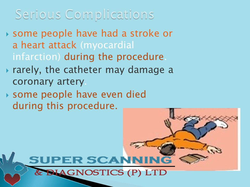  some people have had a stroke or a heart attack (myocardial infarction) during the procedure.