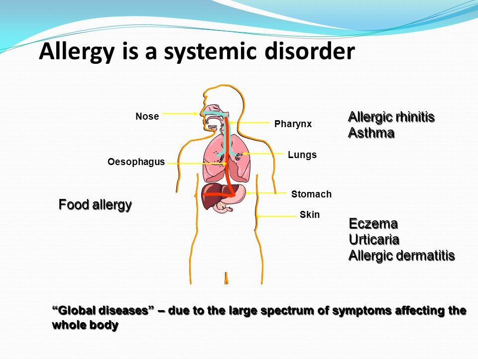 Definition of Anaphylaxis Systemic allergic reaction –Multiple organ systems may be involved Acute onset IgE mediated Manifestations vary from mild to fatal May be uni-phasic, biphasic (30-40%), or prolonged (rare)