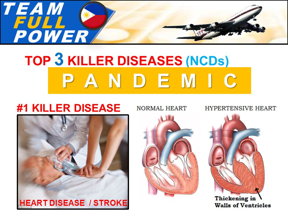 T.E.A.MT.E.A.M F.U.L.LF.U.L.L P.O.W.E.RP.O.W.E.R TOP 3 KILLER DISEASES (NCDs) P A N D E M I C #1 KILLER DISEASE HEART DISEASE / STROKE