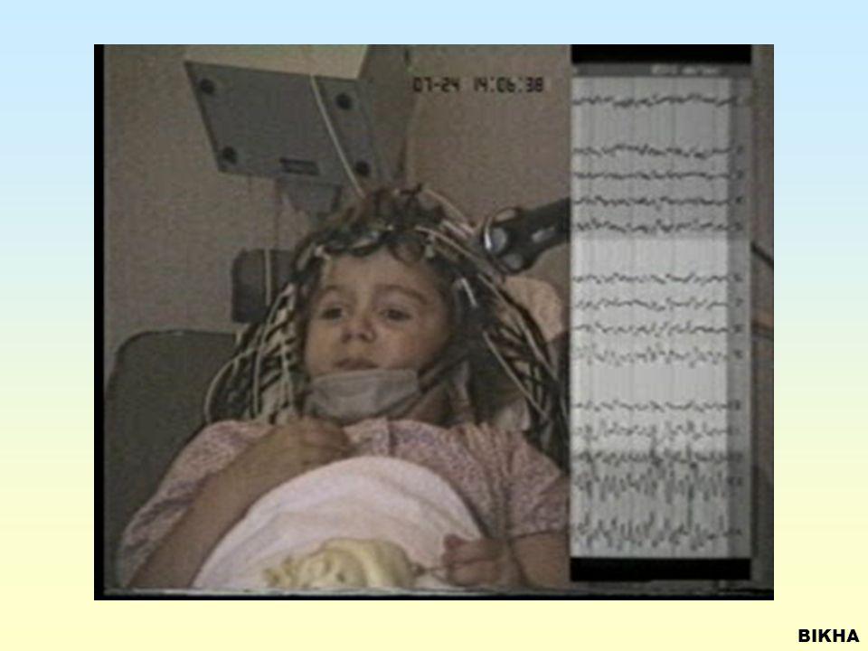 SIMPLE PARTIAL SEIZURES Focus – Occipital