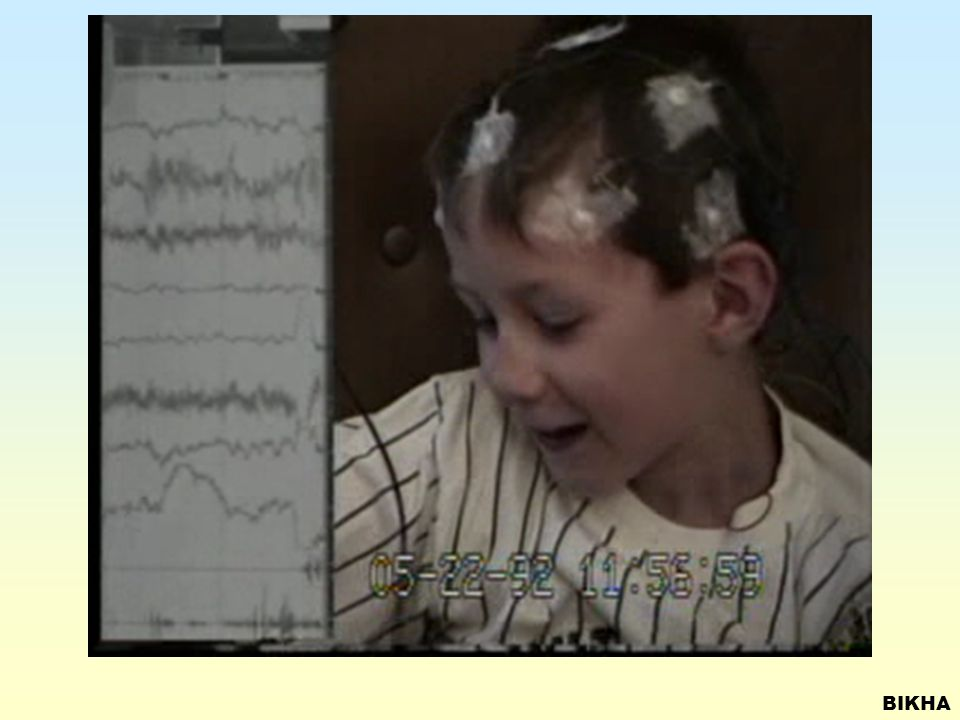 PRIMARY GENERALIZED SEIZURES Simple Absence Childhood non convulsive