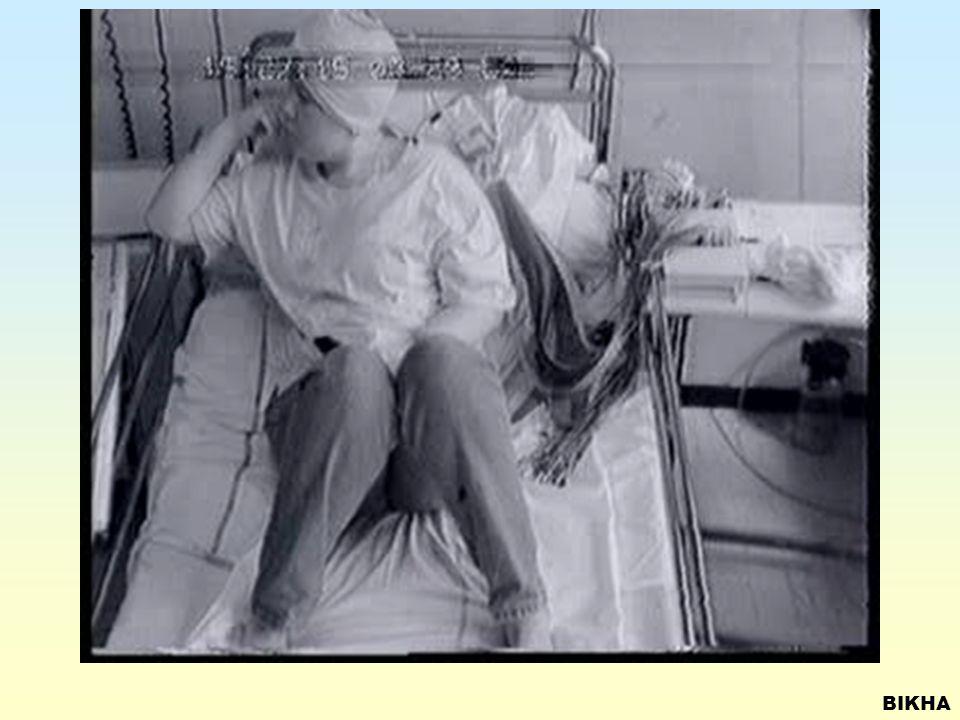 SECONDARY GENERALIZED SEIZURES Focus left occipital