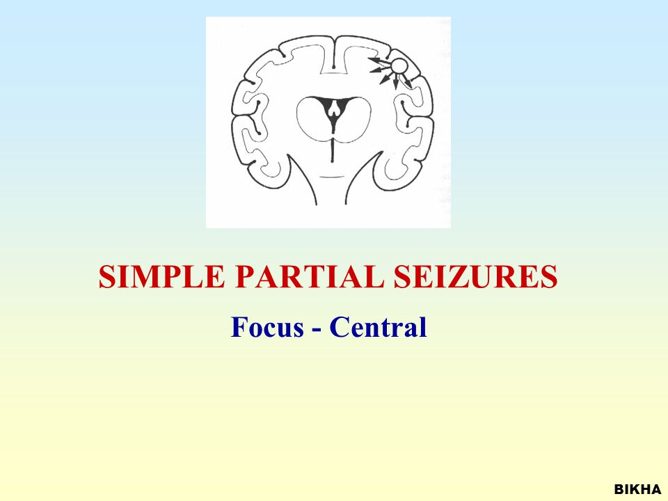 CLASSIFICATION OF SEIZURE TYPES Partial seizures. - Simple Partial - Complex partial Generalized seizures - Tonic clonic - Absence - Myoclonic, tonic,