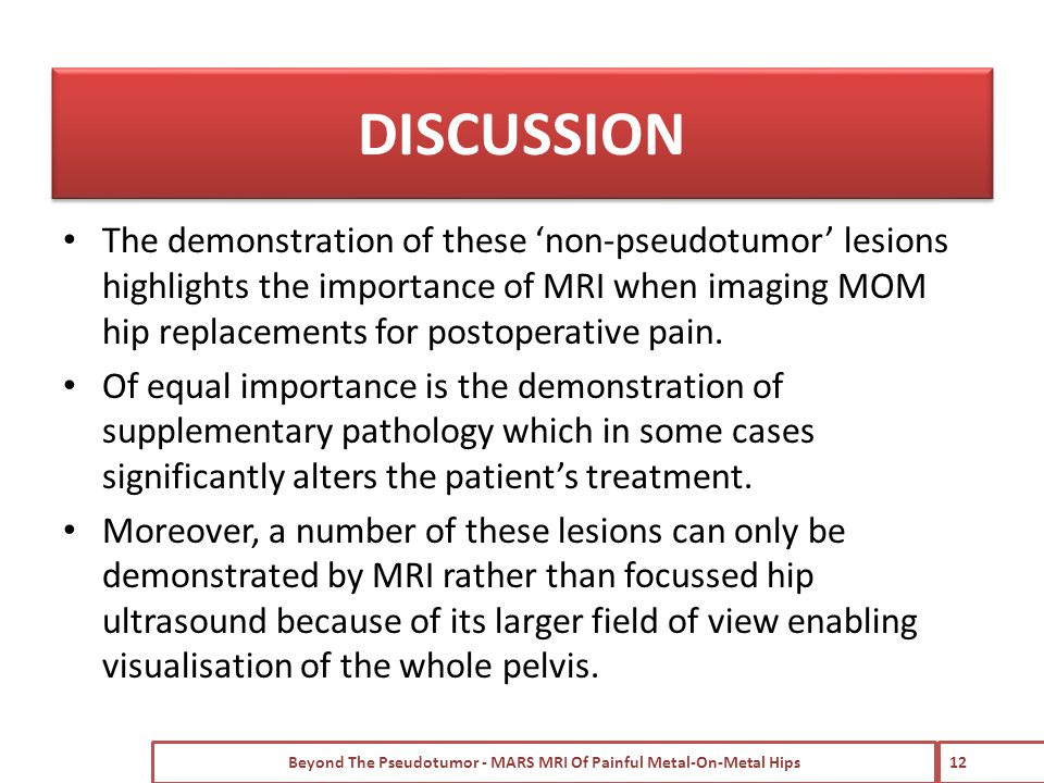 The demonstration of these 'non-pseudotumor' lesions highlights the importance of MRI when imaging MOM hip replacements for postoperative pain.