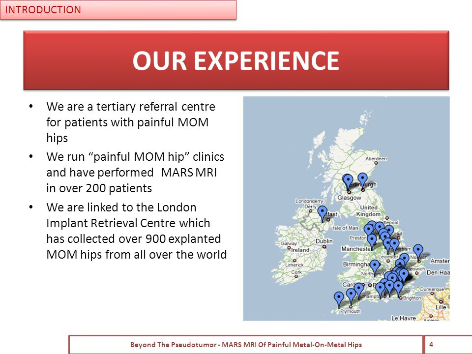 INTRODUCTION We are a tertiary referral centre for patients with painful MOM hips We run painful MOM hip clinics and have performed MARS MRI in over 200 patients We are linked to the London Implant Retrieval Centre which has collected over 900 explanted MOM hips from all over the world Beyond The Pseudotumor - MARS MRI Of Painful Metal-On-Metal Hips 4 OUR EXPERIENCE